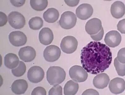 RM-1  小鼠qian列腺癌细胞