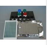 人可溶性凋亡相关因子(sFAS/sAPO-1)ELISA试剂盒