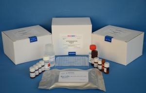 小鼠结缔组织生长因子(CTGF)ELISA试剂盒价格