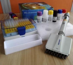 人鸟氨酸氨基甲酰转移酶(OCT)ELISA试剂盒操作说明书 产品图片