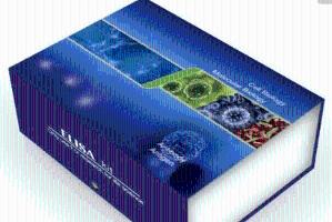 人HDGF试剂盒,肝癌源性生长因子(ELISA)方法 产品图片
