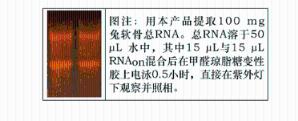软骨RNAout(50次)