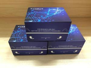 人肿瘤蛋白P63(TP63)ELISA试剂盒 产品图片