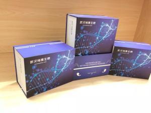 人基质金属蛋白酶9(MMP-9)ELISA试剂盒 产品图片